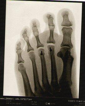 Radiographie d'un pied d'homme adulte